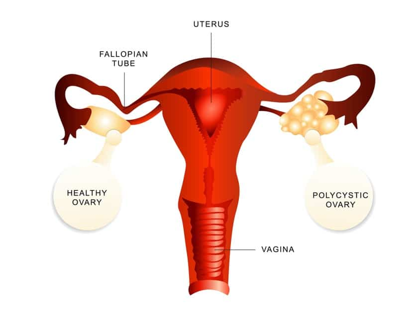 An image showing Polycystic vs healthy ovaries to depict PCOS